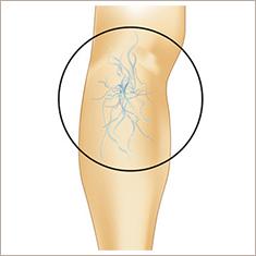 網目状静脈瘤
